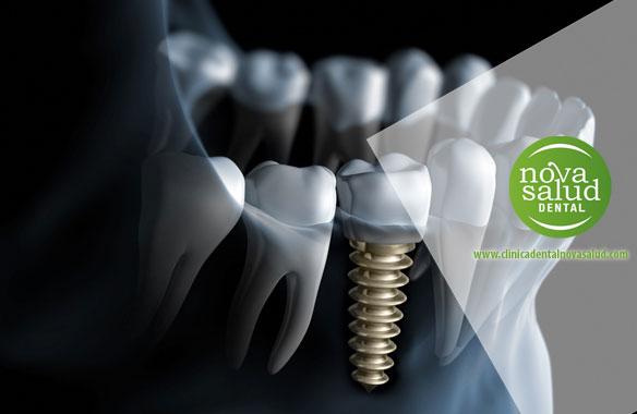 implantes dentales puerto santa maria