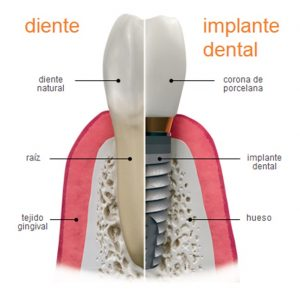 implante dental puerto santa maría