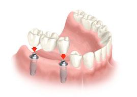 implantes dentales puerto santa maría