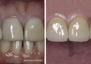 protesis dental puerto santa maría