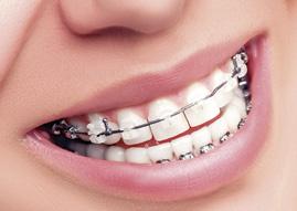 ortodoncia estetica puerto santa maria