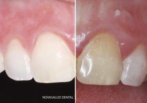 blanqueamiento dental puerto santa maria
