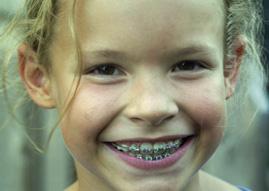 ortodoncia puerto santa maria