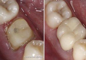 corona dental puerto santa maria